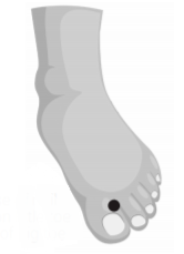 diagram of foot showing meridian point on the big tow