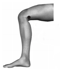diagram of leg showing meridian point on inner back of knee
